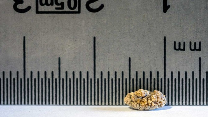 Kidney stones: 6 things you should know